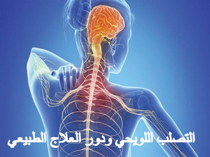 التصلب اللويحي ودور العلاج الطبيعي