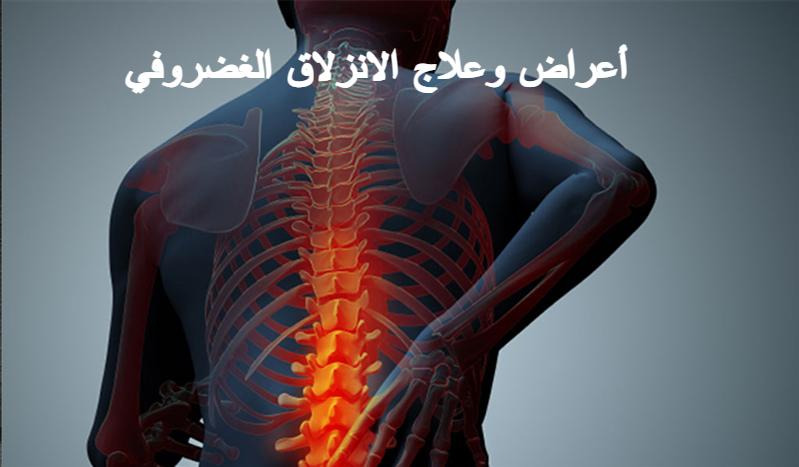 أعراض وعلاج الانزلاق الغضروفي